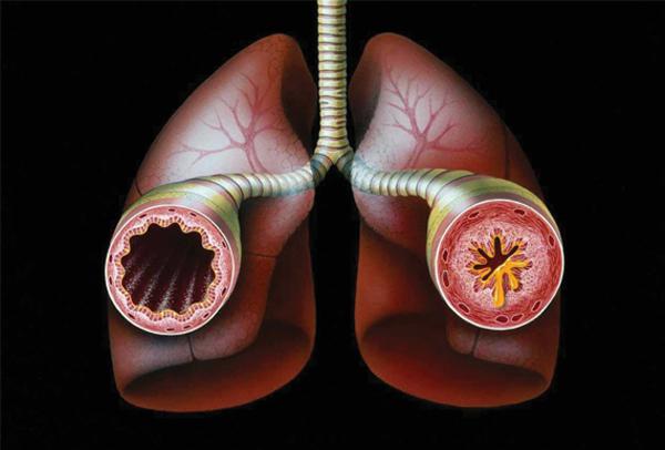 бронхиальная астма магнитогорск