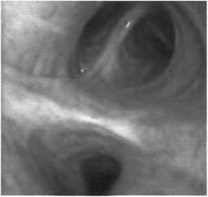 Диффузный катаральный эндобронхит как лечить