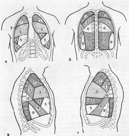Еще чаще отсутствует медиальный базальный (7-й) сегмент в левом легком, хотя, по данным Ю. Б. Васайтиса (1963), он...