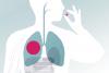 Новый препарат для лечения туберкулеза хорошо показал себя в клинических испытаниях